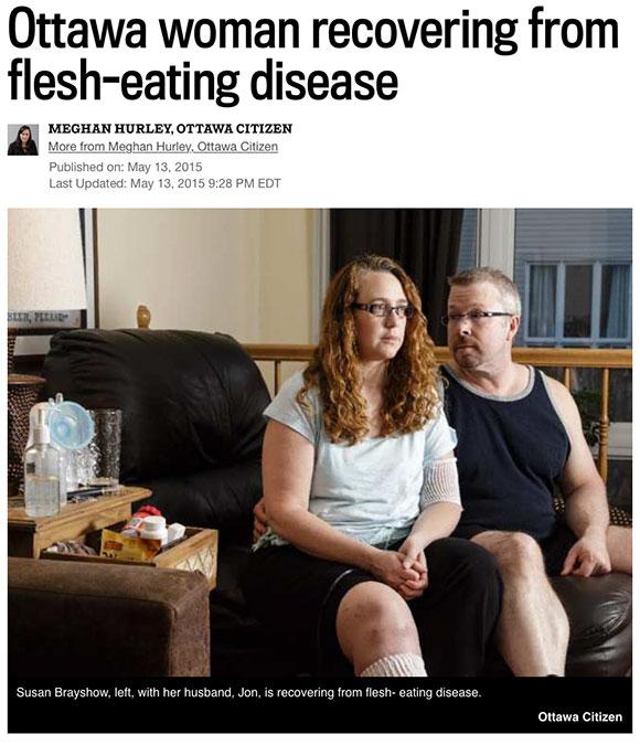 Ottawa Citizen: Ottawa woman recovering from flesh-eating disease. May 13, 2015.